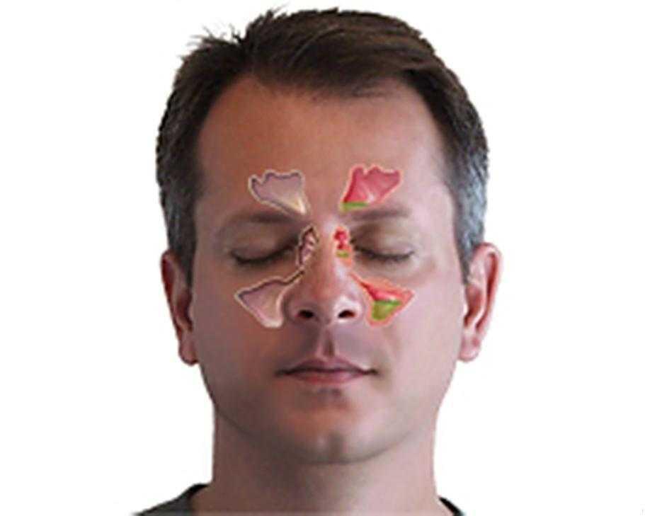 Keshilla sinus