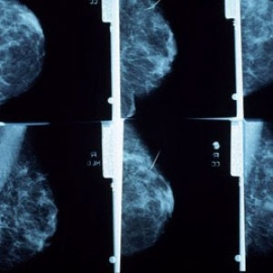Mamografia-300x300