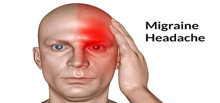 Sherimi I Dhembjes Se Kokes Dhe Migrenes Mjekesia Profetike