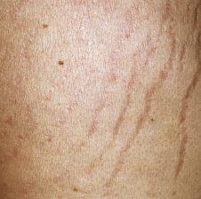 Çarjet e lëkurës dhe trajtimet kundër tyre
