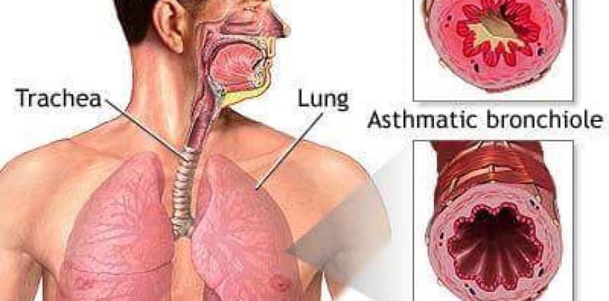 Astma ,shkaqet dhe kurimi natyral