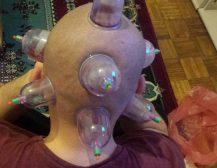 """Hixhame për shërimin e migrenës """"së pashërueshme"""""""