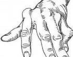 Si ta kurojmë reumatizmëm