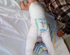 Edi Rama kupton për vogelushen e djegur, ia siguron spitalin në Turqi
