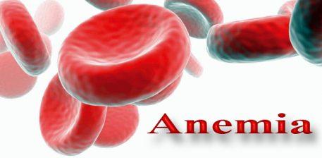 """Anemia, """"5"""" ushqime natyrore për të plotësuar mangësinë e hekurit"""