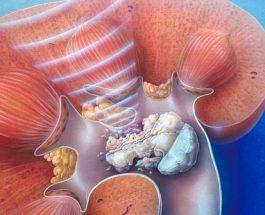 Infeksioni urinar, si ta trajtojmë?