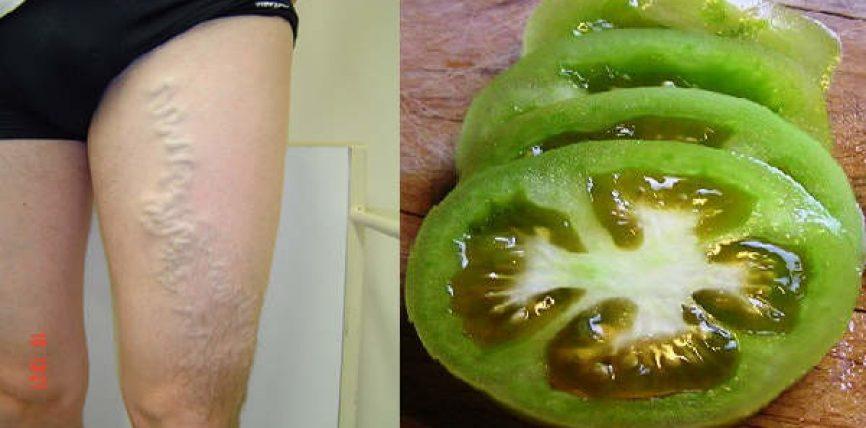 Shëroni venat e zgjeruara me domate