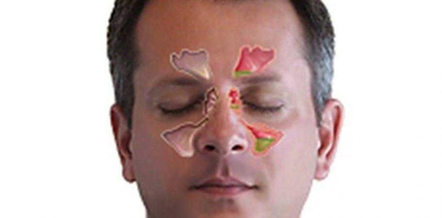 Ilaçi që ndihmon në shërimin e sinuseve