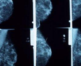 Ilaçi i dhembjeve të gjirit