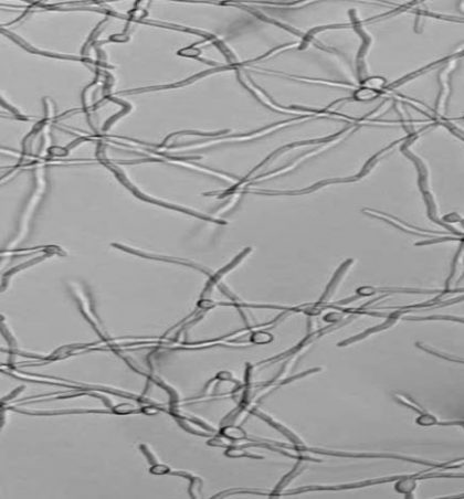 Myku Candida në trupin e njeriut