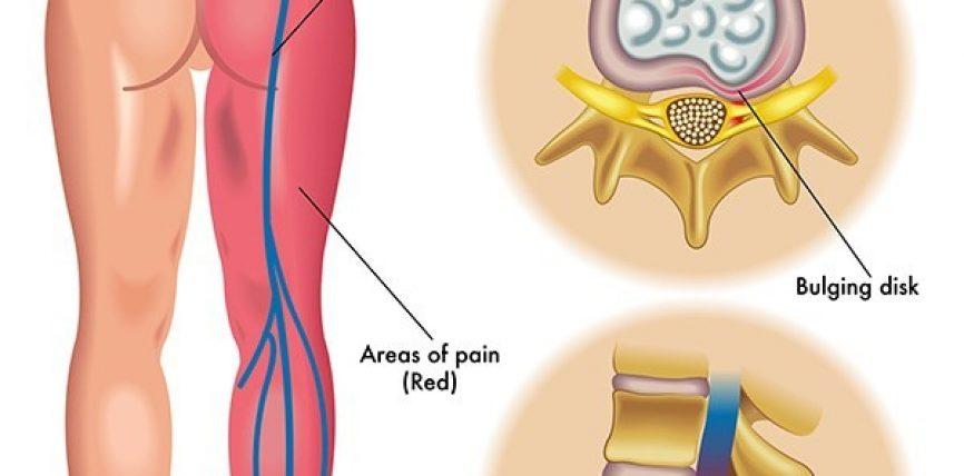Kurat popullore per hernien diskale dhe nervin shiatik