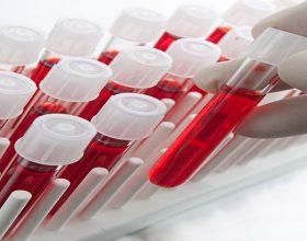 Urgjent – kërkohet dhurues gjaku