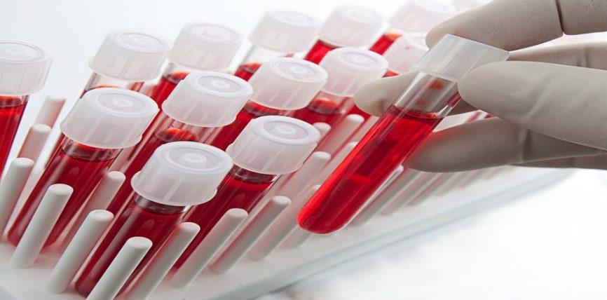 Pasqyra e gjakut dhe vlerat normale