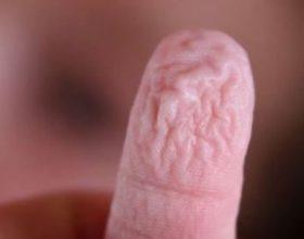Ja pse na rrudhen gishtat kur qëndrojmë gjatë në ujë