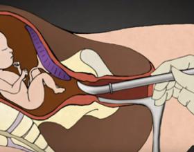 Pasojat vdekjeprurëse të abortit… Mund të çojë në vetëvrasje!
