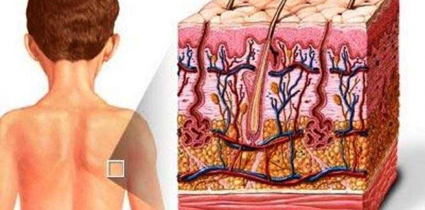 Agjerimi, rikalibrimi enzimatik dhe lëkura