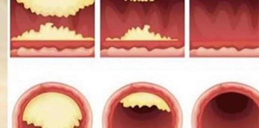 Bllokimi i arterieve, mbipesha dhe sheqeri