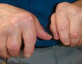 Mjekët janë surprizuar nga këto 4 mjekime që vërtetë i thonë lamtumirë ARTRITIT