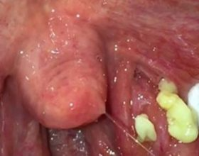 Provoni këto 5 metoda natyrale për infeksionet e bajameve