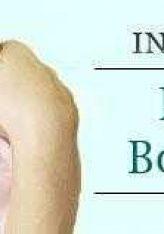 Botulizmi