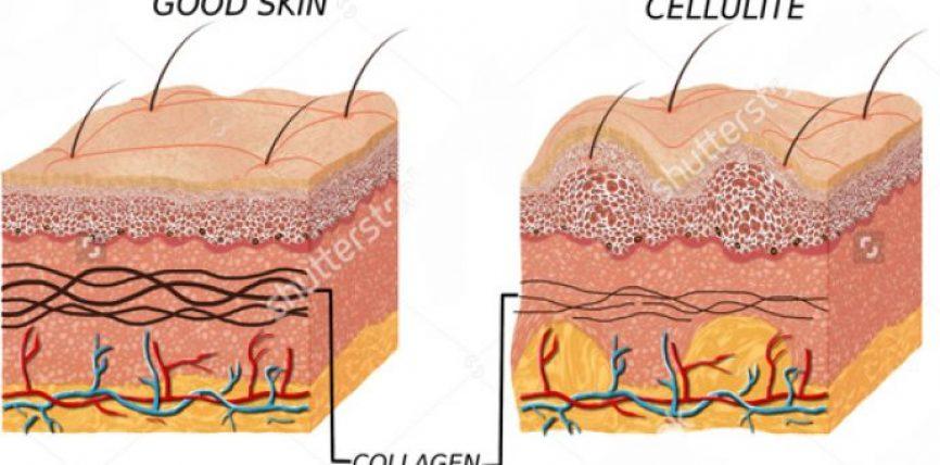 7 Gjërat që gratë duhet të dinë për celulitin