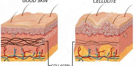 Shtate gjërat që gratë duhet të dinë për celulitin