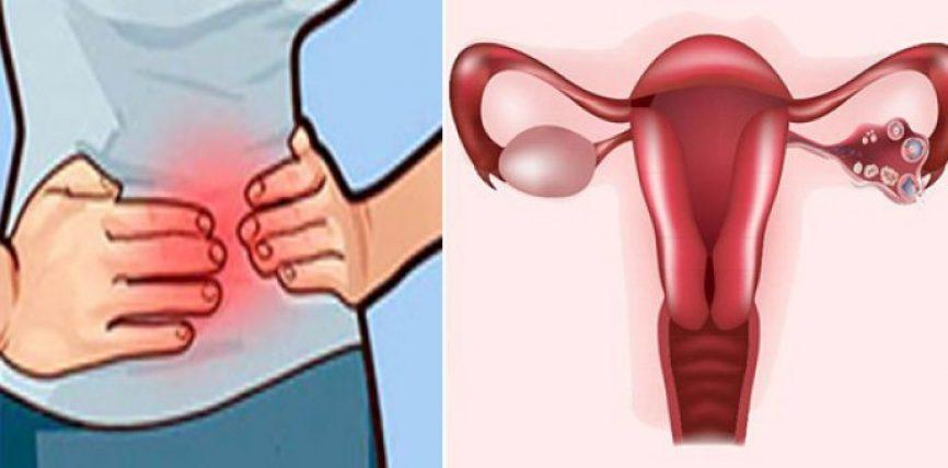 Si mund ta kuptoni nëse cistet ovariane janë kancerogjene dhe ju rrezikojnë shëndetin