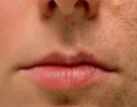 Fërkojeni këtë në cdo shenje plage, rrudhë ose njollë në lëkurën tuaj dhe shikoni si do zhduken brenda disa minutave! Edhe dermatologet habiten