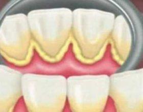 2 mënyra si të hiqni gurëzat e dhëmbëve brenda 5 minutave, pa shkuar tek dentisti