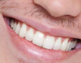 Dhëmbë të bardhë në kushte të shtëpisë