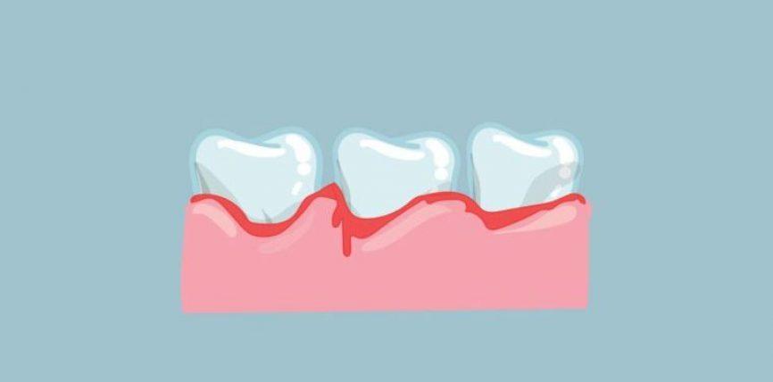 Gjakderdhja e mishrave të dhëmbëve