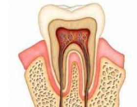 Disa faktorë të prishjes së dhëmbëve