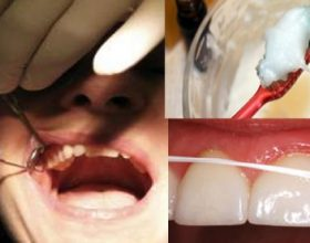 Ja si të kuroni sëmundjen e mishrave të dhëmbëve. Provoni recetën më të mirë të pastë së dhëmbëve