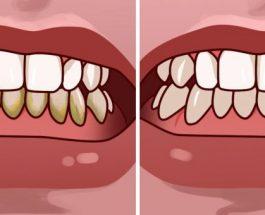 Si të hiqni gurëzat e dhëmbëve në më pak se 5 minuta