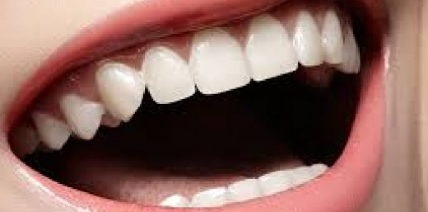 Zbardhni dhëmbët dhe hiqni gurrëzat në kushte shtëpie