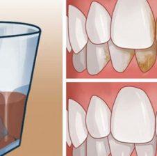 3 mënyra natyrale për të pastruar pllakëzat dhe gurëzat e dhëmbëve në kushte shtëpie