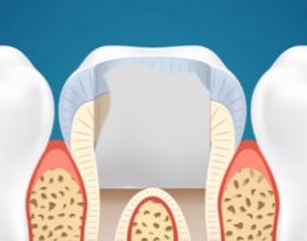 A e dini pse nuk duhet ta hiqni dhëmbin e pjekurisë?