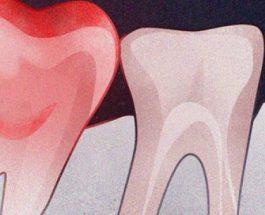 Sodë buke dhe kripë për të larguar dhimbjen e dhëmbit