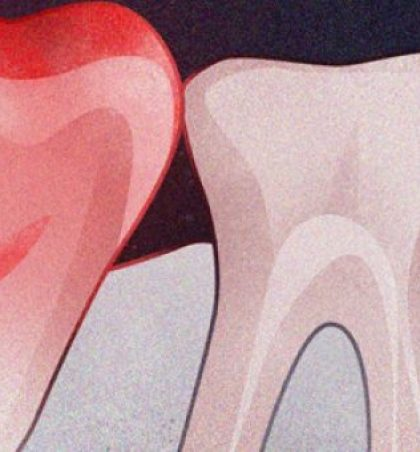 Ja 10 Shenjat e infeksionit të dhëmbëve dhe 6 trajtimet e tyre në shtëpi