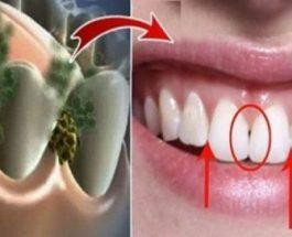 Ja si të largoni erën e keqe për 5 minuta: Me këtë produkt natyral do të shkatërroni të gjitha bakteret!