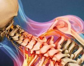 Si të largoni dhimbjen e qafës dhe shpatullave në shtëpi