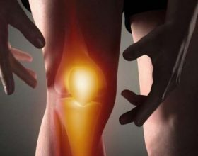 Ilaçi natyror për të zhdukur përgjithmonë dhimbjet në gju