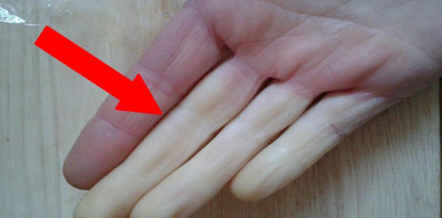 Ja çfarë duhet të hani nëse keni ftohtë nga duart dhe këmbët