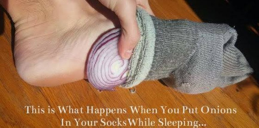 Pse duhet te vendosni qepe nen corape kur te flini gjume? Do ta provonit ju?