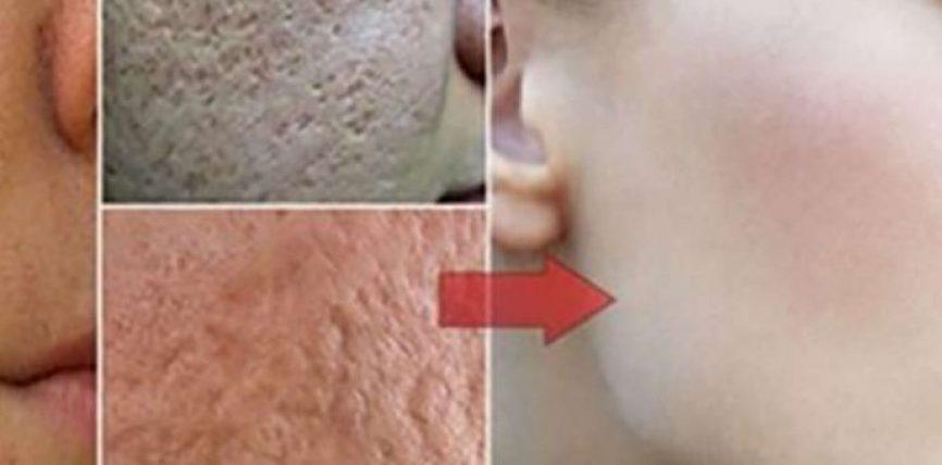 Zhdukni poret e mëdha të fytyrës me vetëm këto 2 përbërës