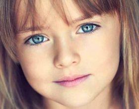 Zbehja në fytyrë e fëmijëve është nga mësyshi ne shumicën e rasteve