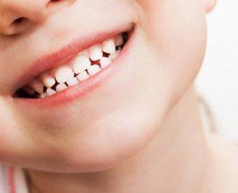 Kujdesi për dhëmbët e fëmijëve
