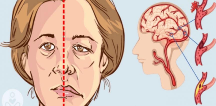 Femrat po pësojnë goditje në tru më shpesh sesa meshkujt, këto faktorë po i rrezikojnë ato