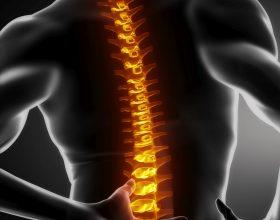 Çfarë trajton fizioterapia?