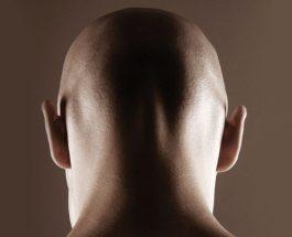 Rruajtja e kokës mund të bëhet për tri arsye